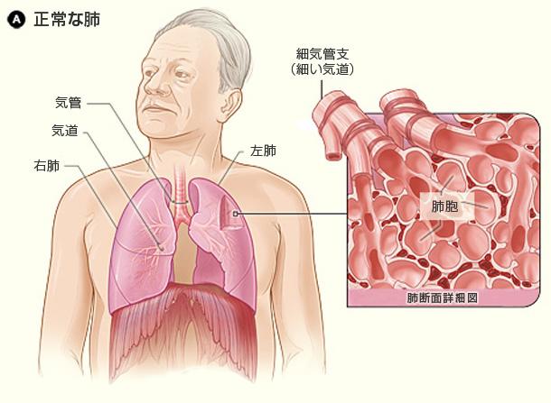 図A:健康な人の肺と肺胞