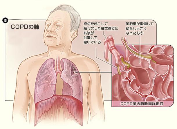 図B:COPD患者の肺と肺胞